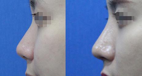 韩国时雨整形外科隆鼻案例