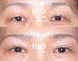 BIO双眼皮案例对比图