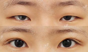 娜娜NANA双眼皮手术改善肿眼泡案例图