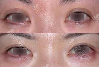 BIO双眼皮修复案例图