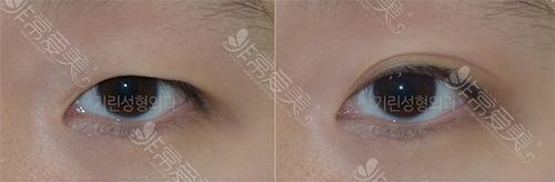 绮林整形双眼皮手术前后效果对比