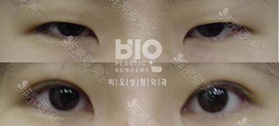 BIO双眼皮案例前后效果图