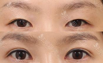 娜娜NANA双眼皮手术改善内案例图