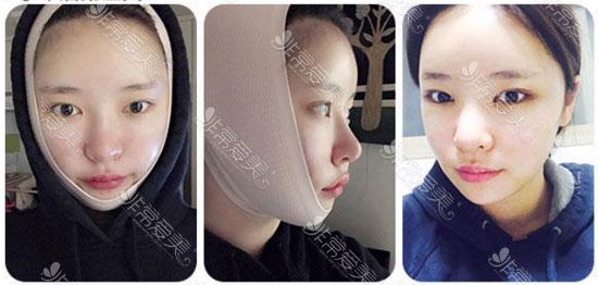 韩国面部吸脂恢复经历