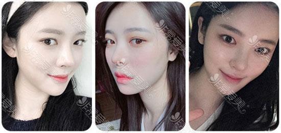 韩国面部吸脂恢复前后图片