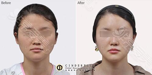韩国新帝瑞娜(灰姑娘)面部填充案例图