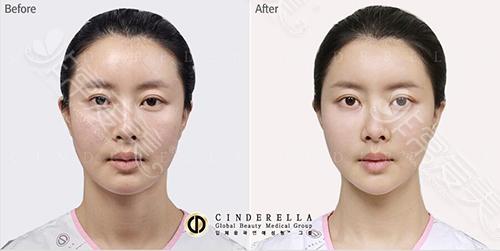 韩国新帝瑞娜(灰姑娘)整形医院面部填充对比图