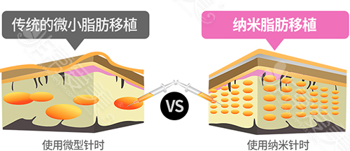 传统脂肪移植与纳米脂肪移植对比图