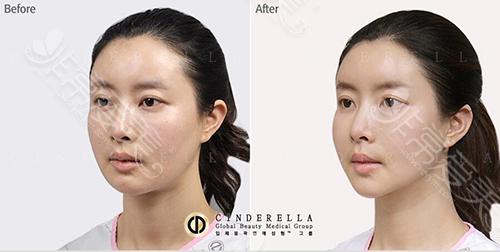 韩国灰姑娘整形医院面部填充案例45°视角图