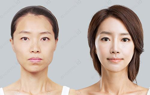韩国ID医院面部填充案例图