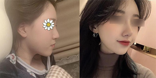 韩国louvre整形外科鼻整形案例图