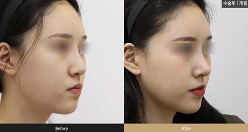 韩国louvre整形外科隆鼻案例图