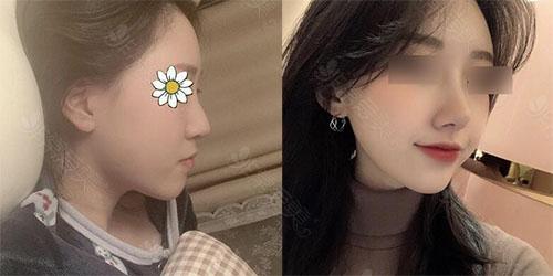韩国louvre整形外科鼻整形