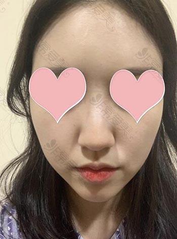 韩国louvre整形外科隆鼻术前案例