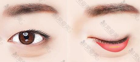 下眼睑内切口展示图
