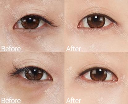 韩国ST整形外科医院去眼袋案例图