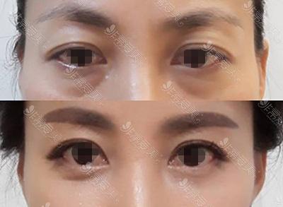 韩国promise博菈米斯整形外科去眼袋案例对比