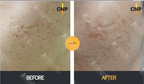 首尔好的皮肤管理店治疗痘印痘疤图片