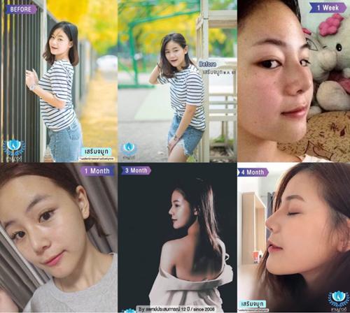 泰国兰纳瓦德整形外科诊所隆鼻案例