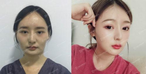 韩国女神整形外科颧骨整形案例