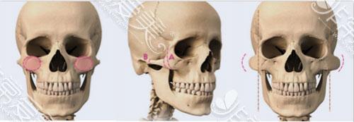 面部骨骼图