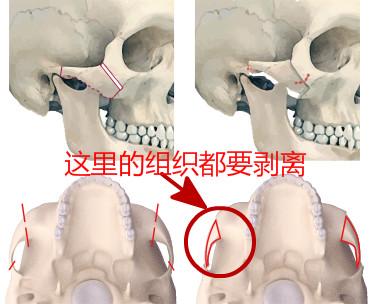 韩国颧骨整形过程解析图