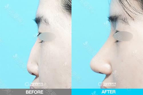 韩国歌娜整形医院隆鼻案例图