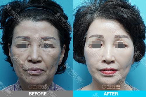 韩国歌娜整形医院面部提升案例图