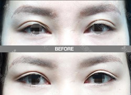韩国歌娜整形医院双眼皮修复案例图