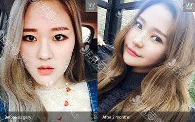 韩国原辰硅胶隆鼻案例