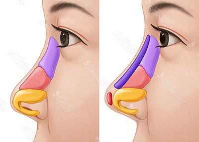 综合性隆鼻图示