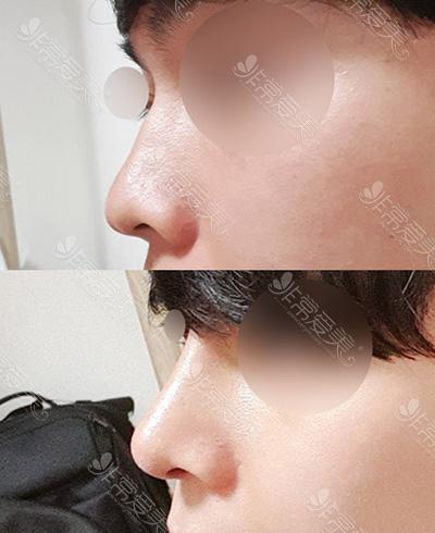 自体软骨隆鼻案例图