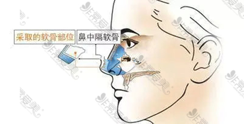 鼻中隔软骨示意图