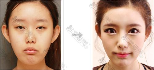 江南DNA整形外科眼部整形案例