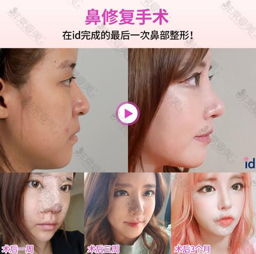 韩国ID医院鼻修复案例对比照