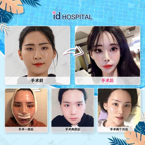 韩国ID医院眼鼻轮廓整形案例