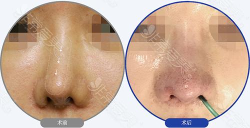 鼻修复前后对比案例图