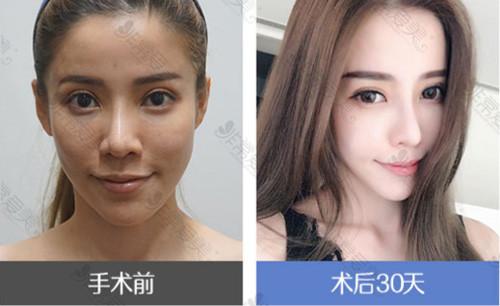 韩国Dreamline整形外科全脸脂肪填充案例