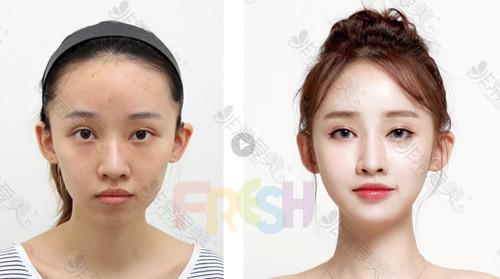韩国芙莱思整形医院面部脂肪填充案例