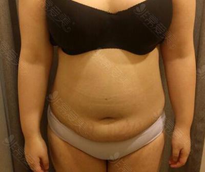 腰腹吸脂术前照片