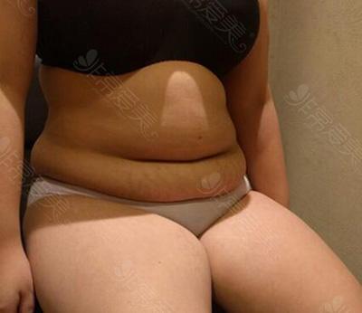 腰腹吸脂术前效果