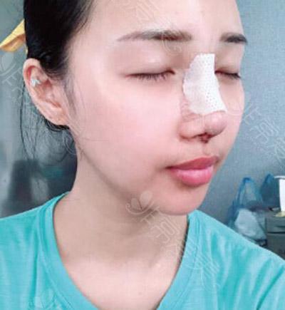 韩国马博尔做鼻修复术后