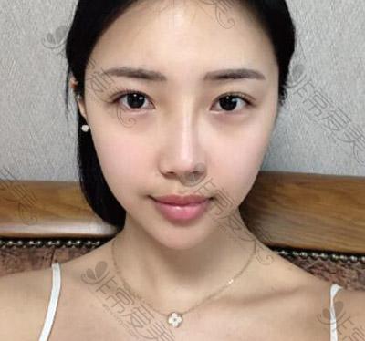 韩国马博尔隆鼻术前
