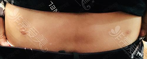 腹部疤痕非常明显