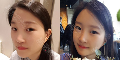 韩国菲斯莱茵整形外科面部手术对比案例
