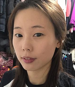 韩国1mm整形全脸术前照片