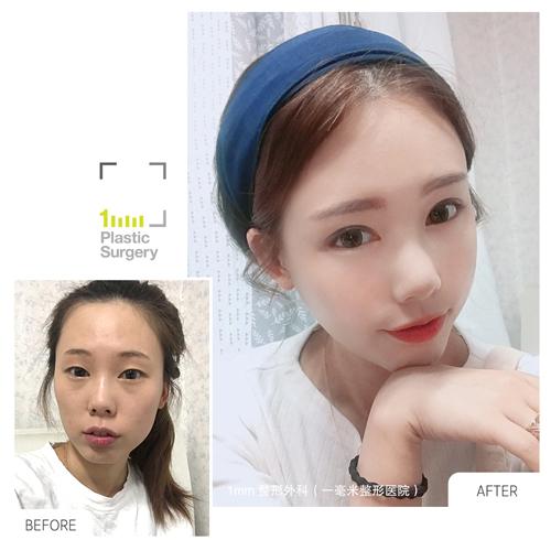 全脸手术前后对比图