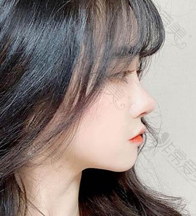 普瑞美整形外科福鼻改善恢复期照