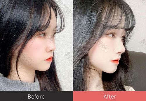 普瑞美整形外科福鼻改善前后对比照片