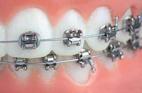 自锁托槽牙套_自锁和非自锁牙套有什么区别,两者相比哪个好?效果一样吗 ...
